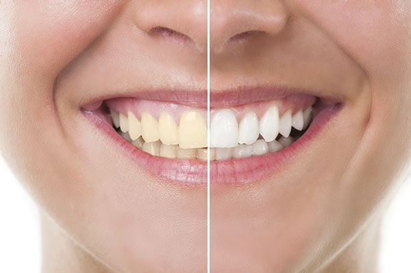 How To Treat Yellow Teeth Effectively