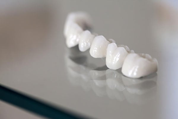 Everything You Need To Know About Your Dental Crowns