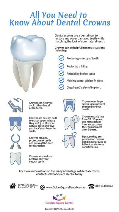 Golden Square Dental | Everything You Need To Know About Your Dental Crowns P | Dentist Golden Square