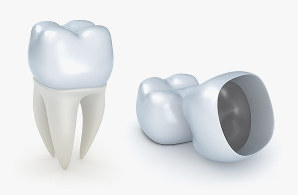 What Is The Expected Life Span Of A Dental Crown?