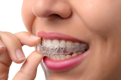 Everything you need to know about Orthodontics